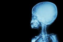 Filmen Sie Röntgenstrahlschädel und Körper des Kindes (leerer Bereich an der linken Seite) Stockfoto