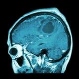 Filmez l'IRM du cerveau avec la tumeur cérébrale (avion sagittal, vue de côté, vue latérale) (médicale, les soins de santé, le fo Photo stock