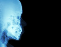 Filmi l'osso nasale laterale dei raggi x (vista laterale del cranio) e soppressione l'area alla destra Fotografia Stock Libera da Diritti