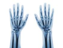 Filmröntgenstråle av båda normala människahänder Bekläda beskådar Arkivfoto