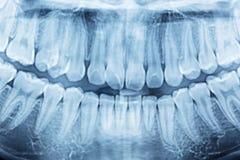 Filmröntgenstråle av en mun royaltyfri foto