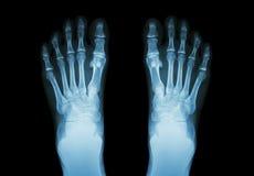 Filmröntgenstråle båda fot (den främre sikten) Royaltyfri Foto