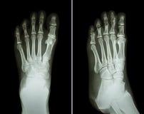 Filmröntgenstråle båda fot (position 2: främre sikt och sidosikt) Fotografering för Bildbyråer