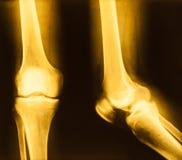 Filmröntgenstrålebild av knäet royaltyfria bilder