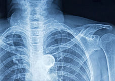 Filmröntgenstrålebröstkorg Arkivfoton