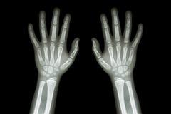 Filmröntgenstråledet normala båda händer av barnet Arkivfoto