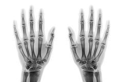 Filmröntgenstrålen båda räcker AP-showen normala mänskliga händer på vit bakgrund & x28; isolerat & x29; Royaltyfri Fotografi