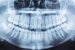 Filmröntgenstraal van een mond stock fotografie