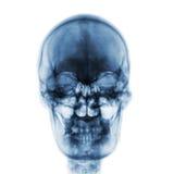 Filmröntgenstraal van normale menselijke schedel op geïsoleerde achtergrond Front View Royalty-vrije Stock Afbeeldingen