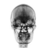Filmröntgenstraal van normale menselijke schedel op geïsoleerde achtergrond Front View Stock Afbeeldingen