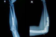 Filmröntgenstrahl-Handgelenkbruch Stockfotos
