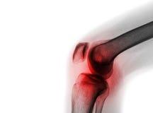 Filmröntgenstrahlkniegelenk mit Arthritis u. x28; Gicht, rheumatoide Arthritis, septische Arthritis, Arthroseknie u. x29; stockfotografie