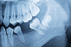 Filmr?ntgenstraal van tanden stock fotografie