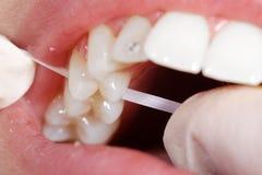 Filo per i denti del primo piano Fotografia Stock