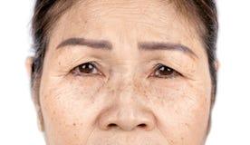 Fim acima do enrugamento da pele e das sardas da cara asiática velha da mulher fotografia de stock