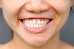 Fim asiático do sorriso da menina foto de stock royalty free