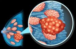 Fim do diagrama do câncer da mama acima ilustração do vetor