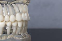 Fin latérale vers le haut de la vue du modèle de dents Images stock