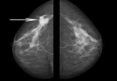 Finanzieren Sie den Kampf, finden Sie einen Heilungpoststempel mammogramm Lizenzfreie Stockfotografie