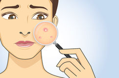 Finding acne with magnifier. A magnifier on hand magnifying the woman facial to finding acne on her face area. She have feeling stress because acne Stock Image