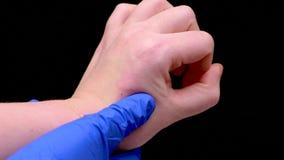 Fine del morso di insetto su Medico in guanto medico blu ispeziona il sito del morso archivi video