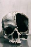 Fine umana rotta del cranio su Immagine tonificata Fotografia Stock Libera da Diritti