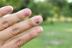 Finger con onychomycosis Un hongo de la uña del pie - foco suave Fotos de archivo