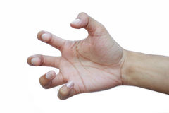 Finger deformity. Stock Images