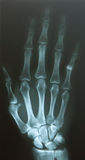 Finger dislocate Stock Photography