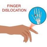 Finger Dislocation human medical  organ vector illustratio. Finger Dislocation human medical  organ vector illustration Stock Photos