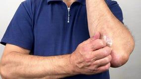 Finger eines alten Mannes mit Psoriasis und Ekzem Eine Nahaufnahme der Hautschale stock footage