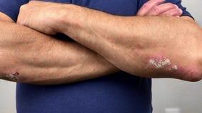 Finger eines alten Mannes mit Psoriasis und Ekzem Eine Nahaufnahme der Hautschale stock video footage