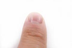 Finger mit trockenen Häutchen Lizenzfreies Stockfoto