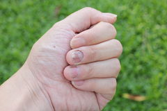 Finger with onychomycosis. A toenail fungus.. - soft focus Royalty Free Stock Photography