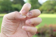 Finger with onychomycosis. A toenail fungus.. - soft focus Royalty Free Stock Photos
