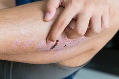 Finger scratching itchy knee with healing injury from abrasion Stock Photo