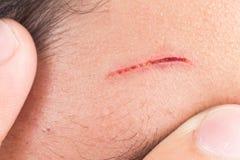Finger umfassen schmerzliche Wunde auf Stirn vom tiefen Schnitt Stockfotografie