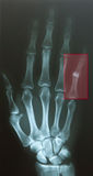 Finger verrücken Stockfotos