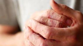 Fingeres de un hombre con psoriasis y eczema Un primer de la peladura de la piel metrajes