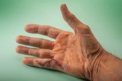 Fingerkirurgi Arkivbilder