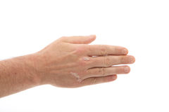 fingernailshandpsoriasis under arkivfoton