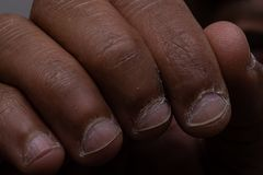 Fingers of Black Person With Diseased Nails and Cuticles royalty free stock photos