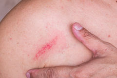 Fingers embrace minor bruise on skin between shoulder and chest Stock Photo