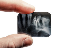 Fingers are holding the x-ray of teeth isolated on background Royalty Free Stock Image