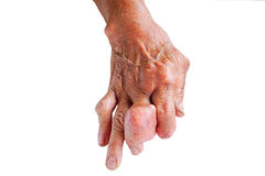Fingers of patient of gout. Royalty Free Stock Photo
