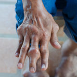 Fingers of patients. With gout royalty free stock photo