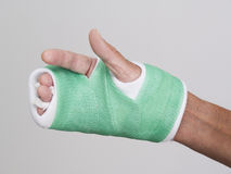 Fingers of right hand in green cast Stock Image