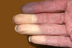 Fingers Turned White from Reynaud Disease. Fingers showing three fingers white and one finger black from the lack of blood flowing to the tips caused by Reynaud' Royalty Free Stock Photography