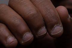 Fingrar av den svarta personen med sjukt spikar och nagelband royaltyfria foton