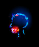 Fire collection, teeth pain. Fire collection Human head, headache Royalty Free Stock Photography